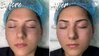 Creating perfect eyebrows. Microblading