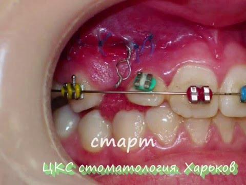 Брекеты, виниры, гигиена полости рта. Ровные и красивые зубы: установка брекетов в стоматологии в москве. Кривые. Эластическую тягу; • кольца.