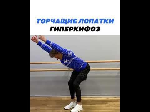 Торчащие лопатки, ГИПЕРКИФОЗ