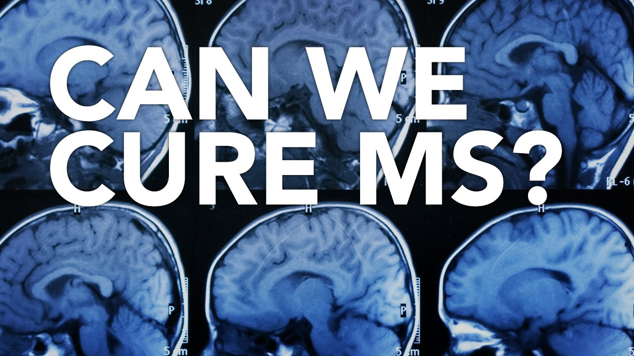Can We Cure MS?