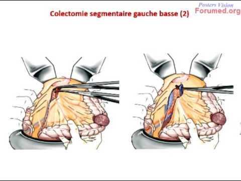 cancer hepatic stadii
