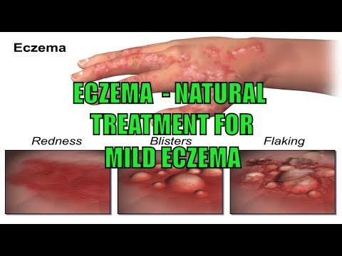 Eczema   Natural Treatment for Mild Eczema