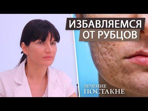 Как удалить шрамы и рубцы на лице после акне (постакне). Лазерная шлифовка после угрей и прыщей