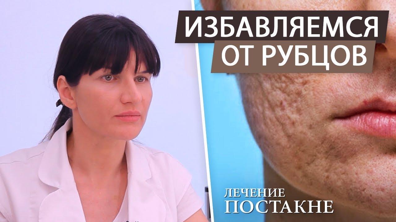 Как удалить шрамы и рубцы на лице после акне?