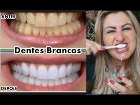 Como Deixar Os Dentes Brancos Em 2 Minutos Receita Caseira Nina