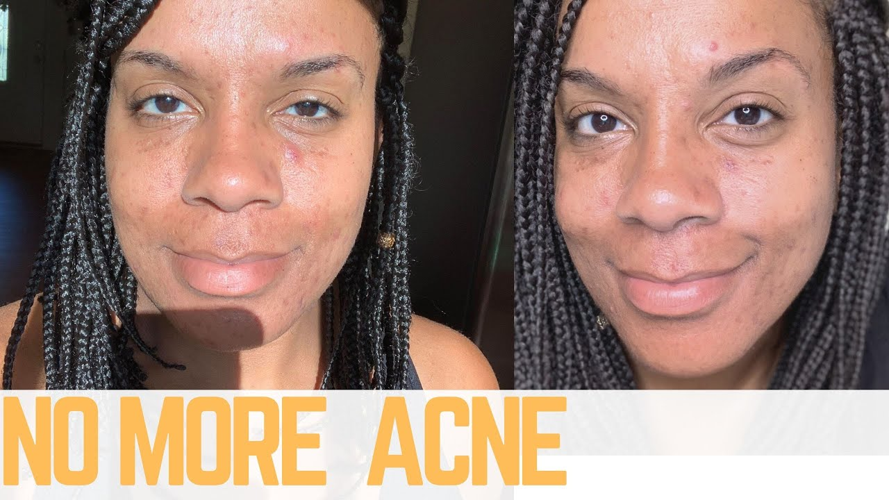 Pantothenic Acid For Acne 2 Week Results Youtube
