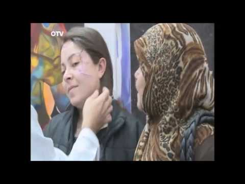 داليا والتغيير  Reconstructive surgery in beirut Lebanon by Dr Toni