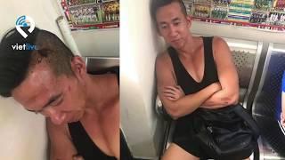 Hình ảnh của Will Nguyễn bị hành hung trên hành trình biểu tình