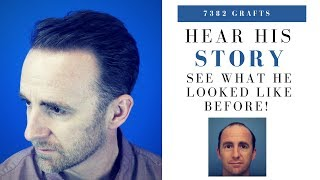 Hair Transplant | 7382 Grafts Hairline, Frontal Zone & Mid Scalp