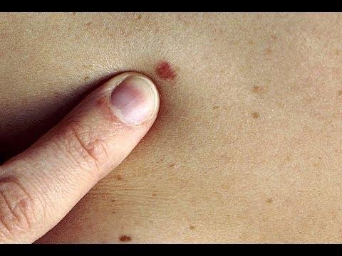 DermTV - The Easiest Way to Identify a Precancerous Mole [DermTV.com Epi #361]
