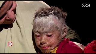 طفلة مصابة بأغرب مرض نادر في مصر (فيديو)