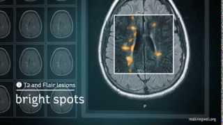 Multiple Sclerosis: Understanding Your MRI