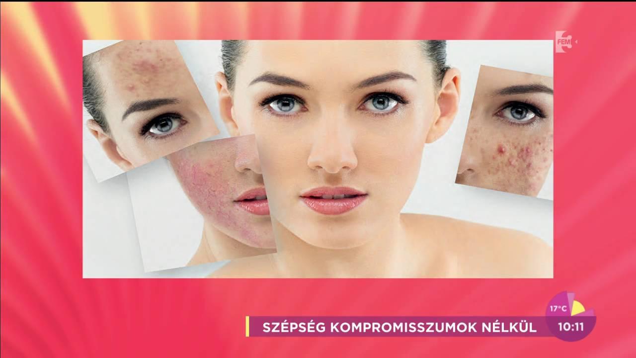 kozmetikai krmek pikkelysömörhöz