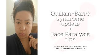 Guillain Barre Syndrome (GBS) update and Face Paralysis tips