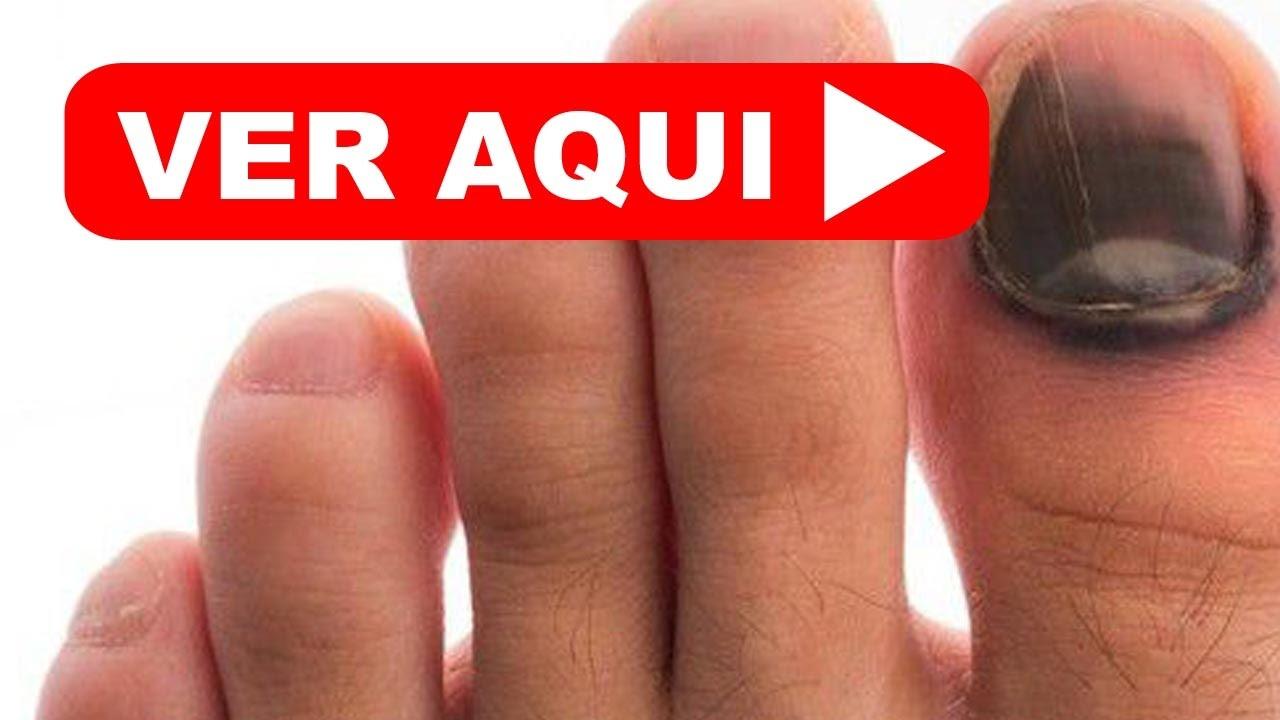 ATENCION!!! Las MANCHAS NEGRAS en las uñas puedes ser de GRAN RIESGO ...