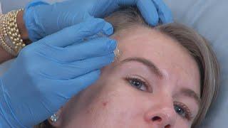 Can Botox Boost Your Facial?