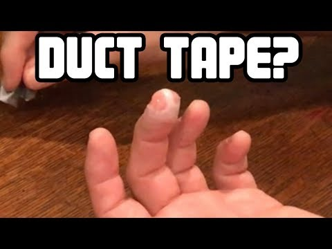 Did Duct Tape Fix My Hand?