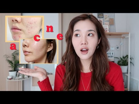 My Honest Experience with Acne Laser Treatment in Korea
