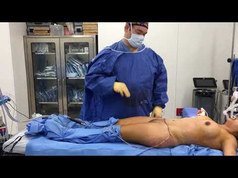 Tummy Tuck and BBL part 2