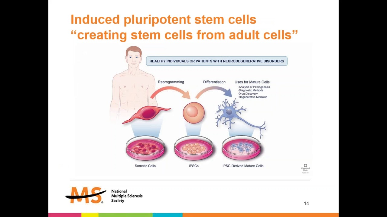Adult Stem Cells To Treat Multiple Sclerosis