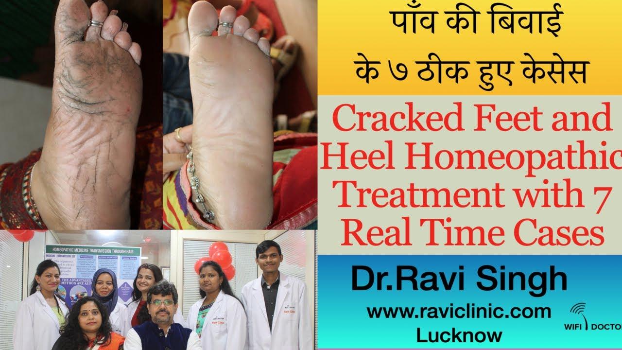 cracked feet symptoms