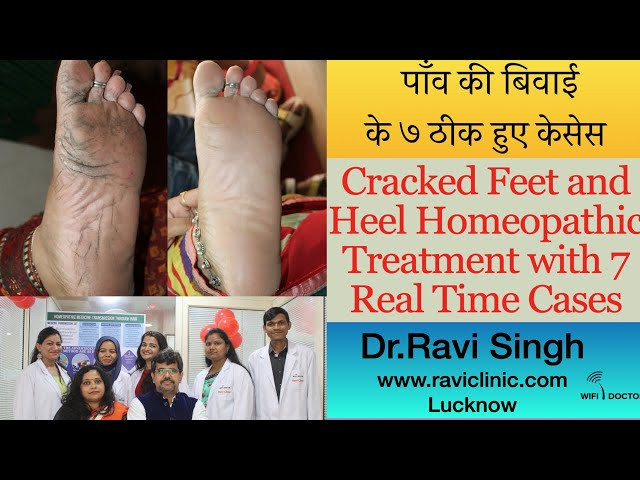 Cracked Feet and Heel Homeopathic Treatment with 7 Real Time Cases