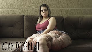 I Refuse To Hide My Giant Tumours | BORN DIFFERENT
