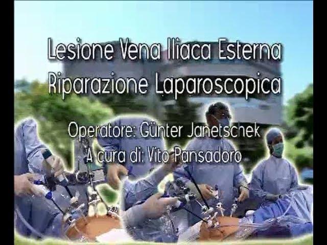 Laparoscopic surgery - Lesione vena iliaca esterna riparazione laparoscopica