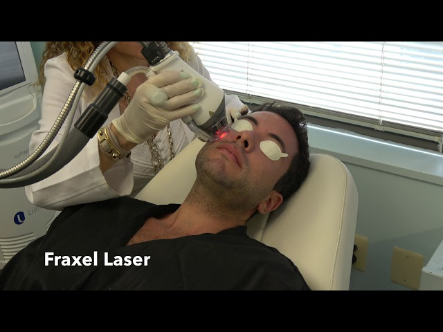Fraxel Laser and Infini RF Microneedling for Acne Scars