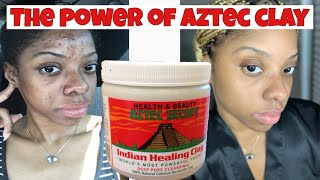 INDIAN AZTEC CLAY AND TURMERIC FACE MASK | BEST ACNE and HYPERPIGMENTATION TREATMENT