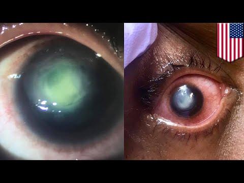 Tidur dengan lensa kontak, kornea wanita ini digerogoti bakteri - TomoNews