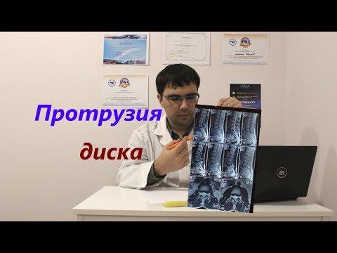 Как лечат протрузии межпозвоночных дисков