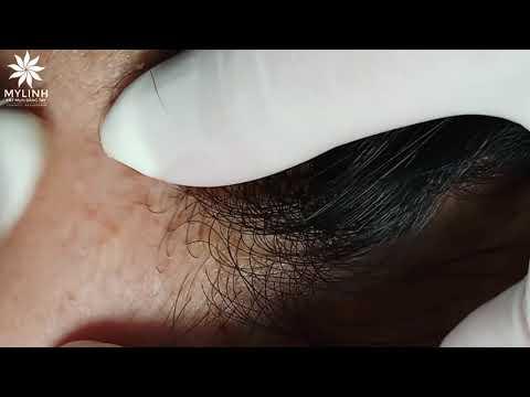 BLACKHEADS AND ACNE REMOVAL #38 | Lấy mụn ẩn dưới da, mụn đầu đen | 黑頭和粉刺去除 | 0934000075