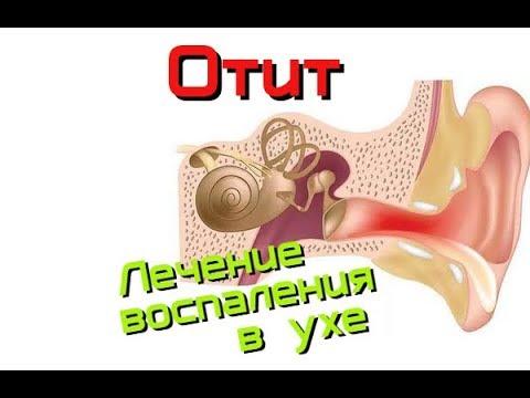 Отит. Лечение воспаления в ухе