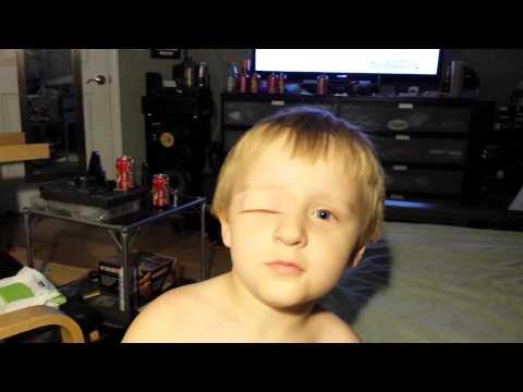 Boy suffers major trauma from dinosaur attack