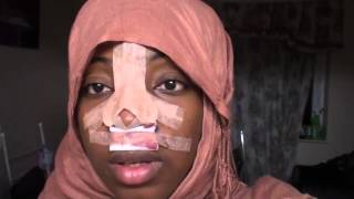 2 Revision Ethnic Rhinoplasty Nose Job Diary  Day 1 After Surgery