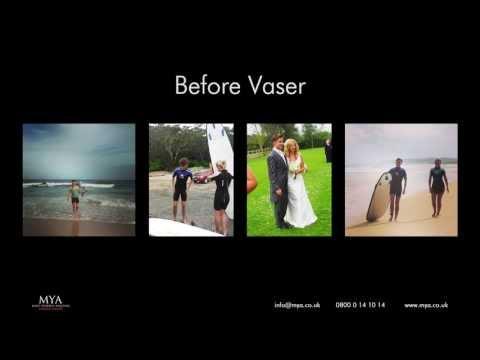 MYA Vaser Liposuction Tom Smith Vaser Diary Montage