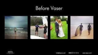 MYA Vaser Liposuction Tom Smith Vaser Diary Montage Thumbnail