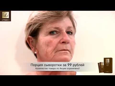 как проявляется аллергия на крем вокруг глаз