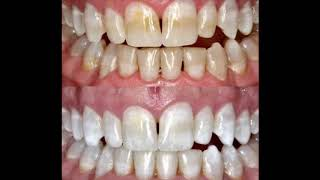 Kor Whitening success! The best tooth bleaching solution!