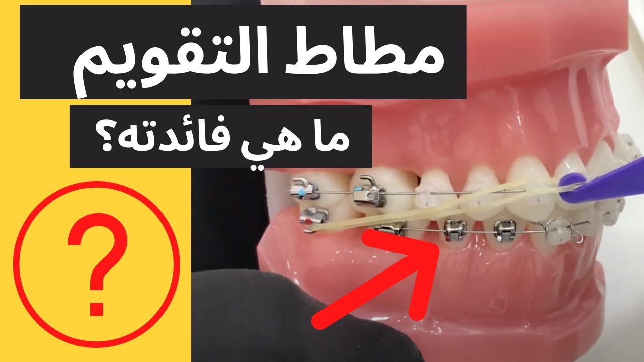 شاهد أهمية استخدام المطاط المنزلي مع تقويم الاسنان Youtube
