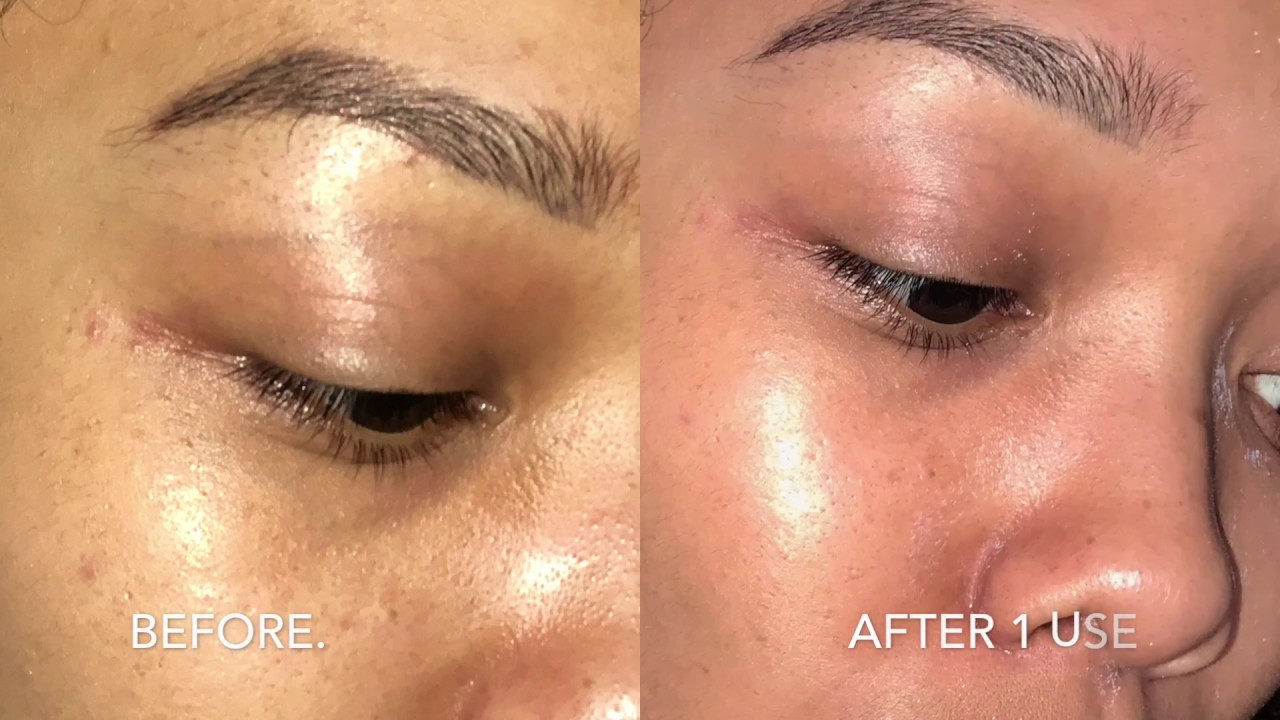 Skincare Dr Brandt Pores No More Vacuum Mask Youtube