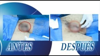 Bioplastia de Engrosamiento de pene por el Doctor Rafael Berdugo