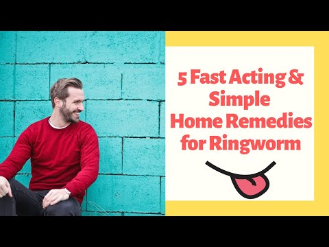 22 Fast Acting & Simple Home Remedies for Ringworm - eHome Remedies