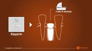 Система имплантации Tekka InKone (Германия)(Имплантация зубов системой Tekka InKone (Германия) в клинике Олета, Киев., 2016-04-11T07:56:36.000Z)
