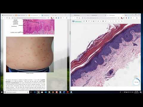 Dermatopathology Made Simple - Inflammatory: Psoriasiform