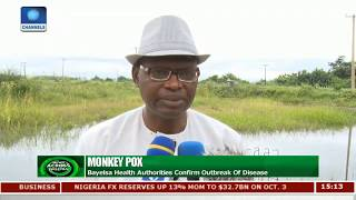 Monkey Pox Outbreak: Bayelsa Govt. Calls For Calm |News Across Nigeria|