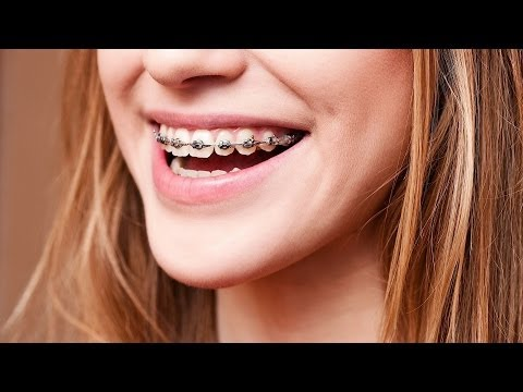 Basics of Braces | Tooth Care