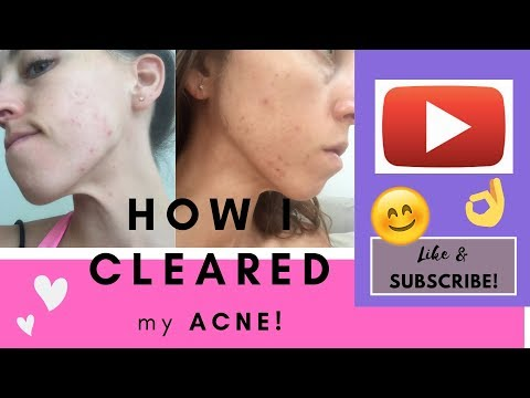 how-i-cleared-my-acne-naturally-in-30-days-//-cystic-post-birth-control-pill-acne