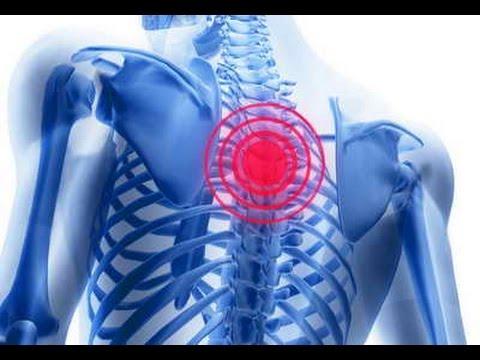 Что делать при остеохондрозе: лечение позвоночника